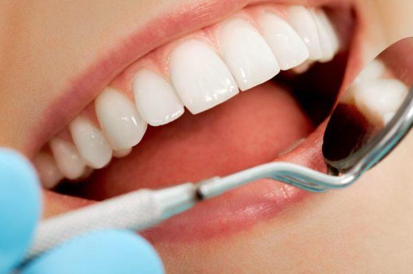 Diş dolğusu etdirmək və ya taxma diş qüsl almağa manedirmi?